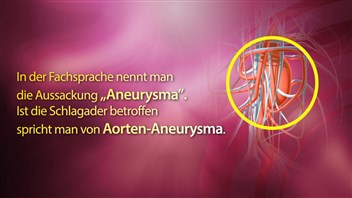 Aortenaneurysma (abdominal)