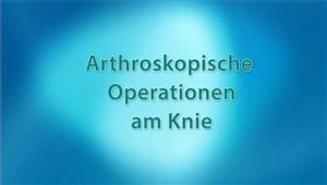 Arthroskopie (Knie)