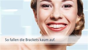 Keramik-Brackets