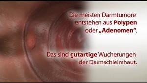 Darmkrebsfrüherkennung (Hämoglobin / Haptoglobin)