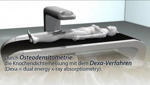 Densitometrie (DXA-Verfahren)