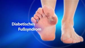 Diabetisches Fußsyndrom