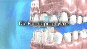 Fluoridprophylaxe