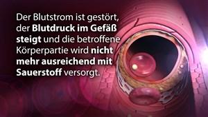 Gefäß-Check