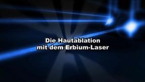 Hautablation