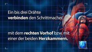 Herzschrittmacher / Defibrillator