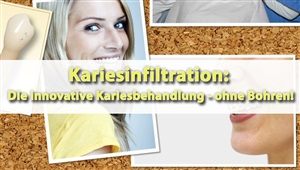 Karies-Infiltration