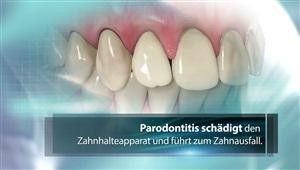 Keimbestimmung bei Parodontitis