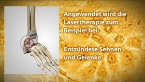 Laser-Therapie (Orthopädie)