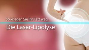 Lipolyse (Laser)