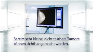 Mammographie (Deutschland)
