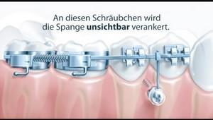 Mini-Implantate (KFO)