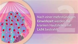 PDT / Photodynamische Therapie (Dermatologie)