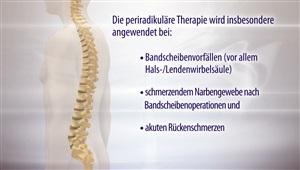 PRT / Periradikuläre Therapie
