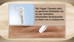 Trigger-Therapie