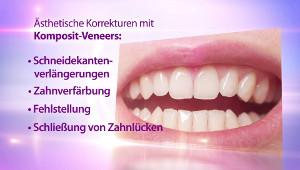 Veneers (Komposit)