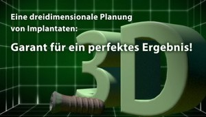3D-Planung Implantate