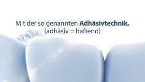 Adh�sivtechnik