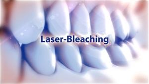 Bleaching mit Laser