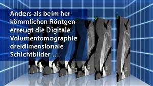 DVT / 3D-Volumentomografie