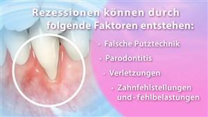 Parodontologische Rezessionsdeckung